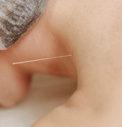 Agopuntura: dosaggio ed efficacia della cura