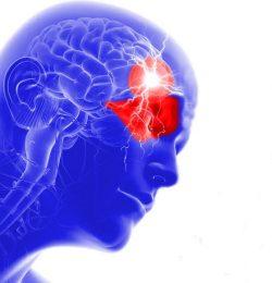 Cefalea a grappolo in fase iperacuta: l'insostituibile efficacia dell'agopuntura