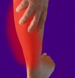 La trombosi agli arti inferiori richiede attenzione in ambito fisioterapico